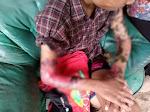 Diduga Belum Juga Sembuh, Seorang Remaja di Cianjur yang Alami Luka Bakar Disuruh Pulang Pihak RSUD Sayang