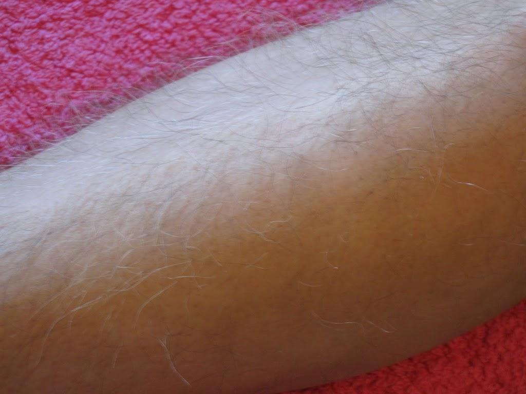 Vitiligo after 2