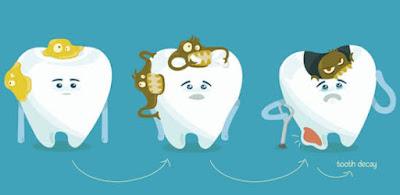 Alasan kamu ke dokter gigi
