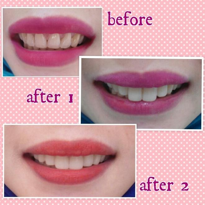 apa itu veneer gigi ancora store u2022 rh ancora store apakah itu veneer gigi apakah itu veneer gigi