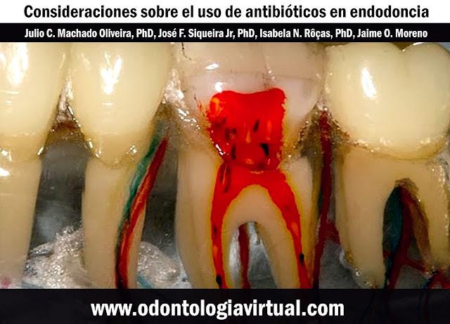 antibioticos-endodoncia
