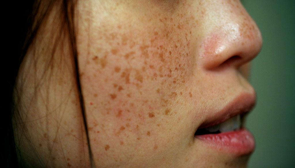 Dark+Spot+Remover+for+Face+remove+black+stains+in+body