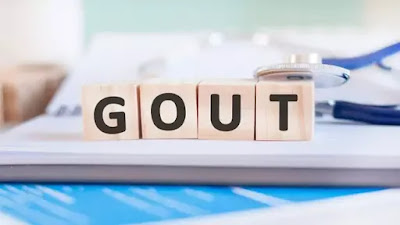 best Foods for hyperuricemia and gout attacks