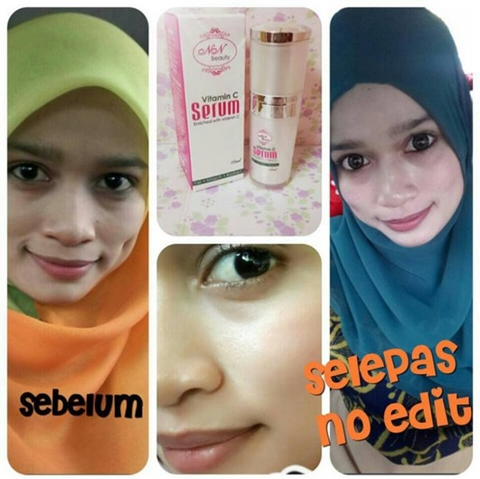 testimoni nn beauty serum vit c