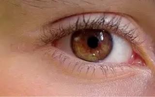 akibat buruk melihat gerhana matahari secara langsung bagi mata