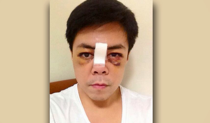 New Photos of Lance Raymundo after Gym Accident 04-02-2014-01
