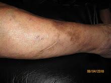 Side of leg before