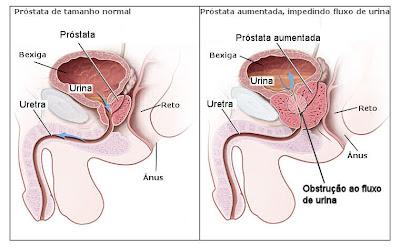 Próstata normal x Próstata aumentada