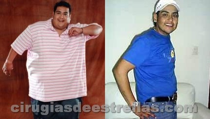 rafita antes y despues
