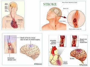 Solusi Sehat Pengobatan  Sakit Stroke