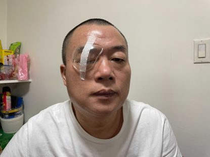 Uber driver suffers eye damage after being bashed in the face with cell phone for refusing to pick up an 'illegal' passenger (photos)