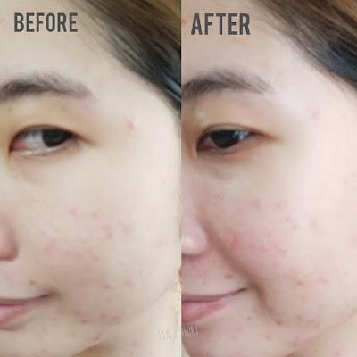 mizzu-m-lab-vita-b-serum-before-after