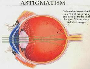 Mirtoplus Untuk Pengobatan Mata Astigmatisma