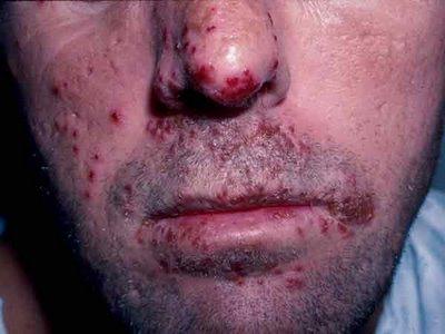 Tuve sexo oral Puedo tener herpes genital