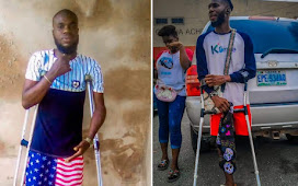 HOW NIGERIAN YOUTHS ON FACEBOOK RAISED 2 MILLION NAIRA IN TWO DAYS TO GET PROSTHETIC LEG FOR TWO BROTHERS.