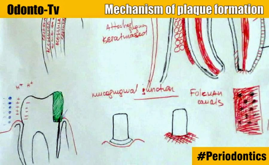 plaque-formation