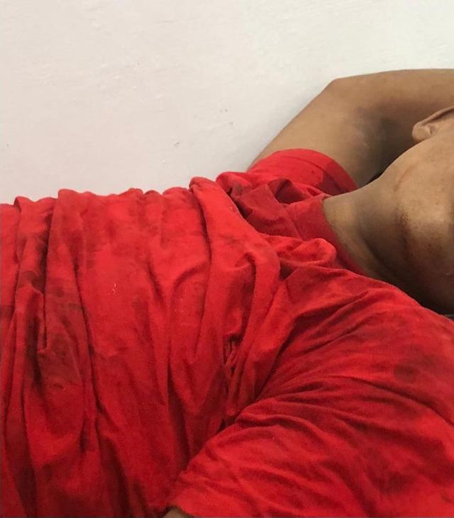 BARAHONA: Un muerto y 3 heridos en accidente de motocicletas