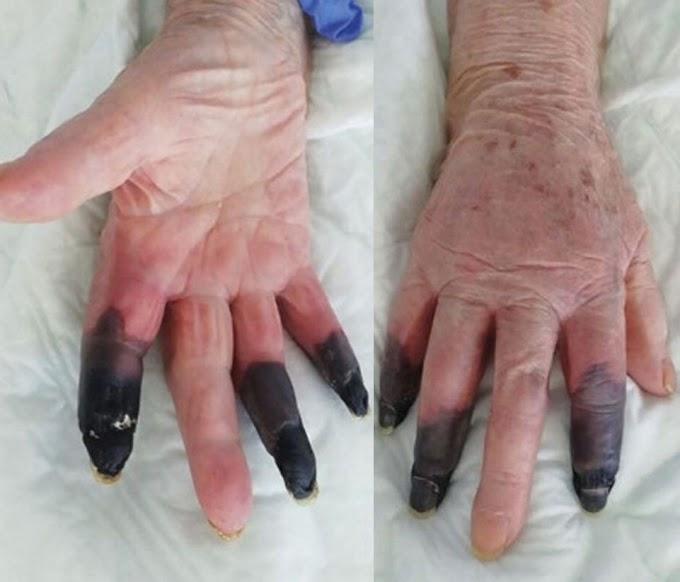 Covid patient's fingers turn black in shocking new 'severe manifestation' of virus