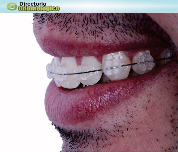 orthodontics-adults