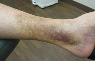 manchas piel piernas