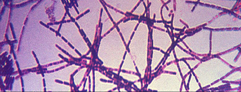 Government snafu causes deadly anthrax scare