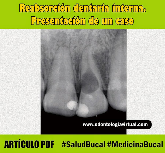 reabsorcion-dentaria-interna