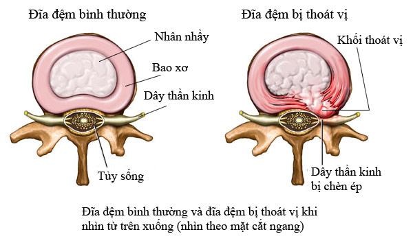 Triệu chứng căn bệnh thoát vị đĩa đệm đốt sống thắt lưng như thế nào Thoat-vi-dia-dem-dot-song