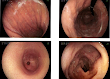 Detecting early stages of stomach cancer with the use of gastroscopy