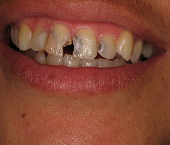 cárie-dentária