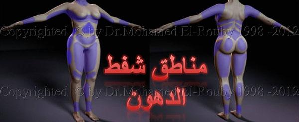 مناطق شفط الدهون من الجسم