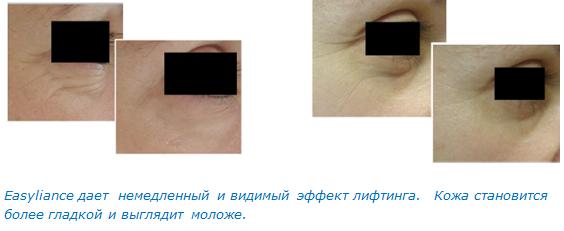 [Easyliance%2B4]