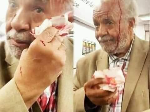 """Muy triste , la Mujer que ataco al anciano por que gritaba """"Jesús Viene Pronto"""""""