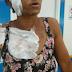 Detienen hombre le prendió fuego a ex mujer en La Vega