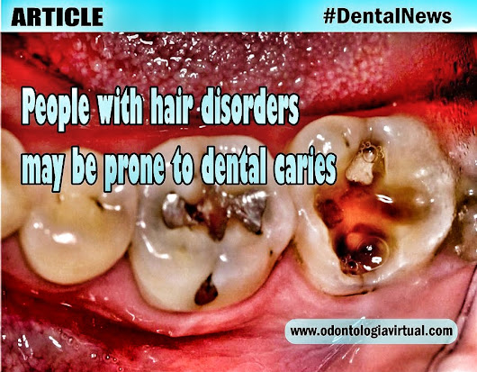 DENTAL NEWS: People with hair disorders may be prone to dental caries | Ovi Dental