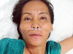 Nghi can Nguyen Thi Van dang dieu tri tam than Anh CA