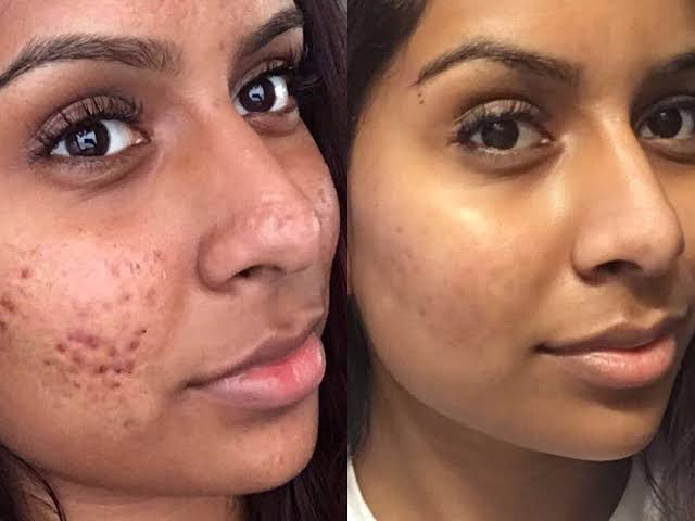 How To Get Rid Of Pimples (Home Remedies)