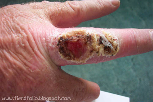 recluse spider bite on finger