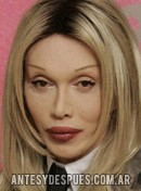 Pete Burns,