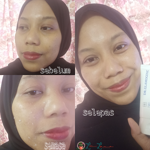 Review Brassica Peeling Gel Dari DR.GLAMOGENIC