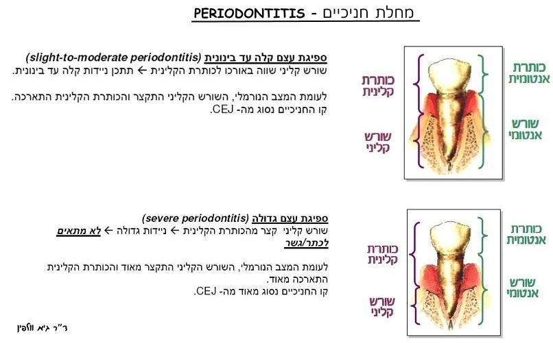 """מחלת חניכיים - פריודונטיטיס - periodontitis - ד""""ר גיא וולפין, אסתטיקה דנטלית, דרגות חומרה"""