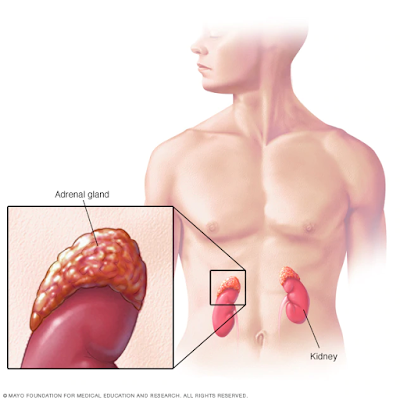 addisons disease causes