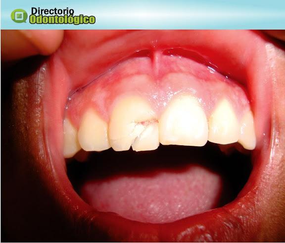 Trauma Dentário