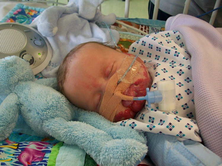 Ethan in PICU under sedation