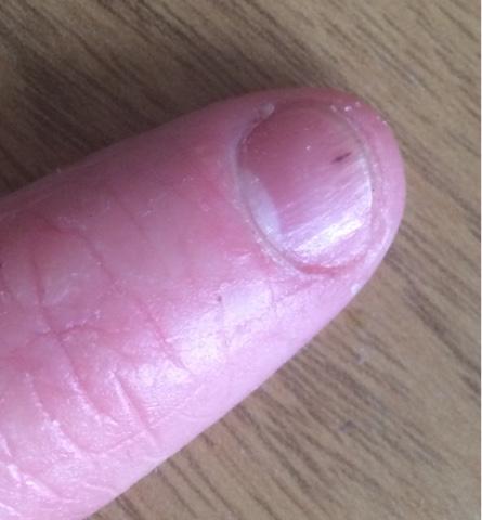 Thin Dark Lines Under Nails - Best Nail 2017