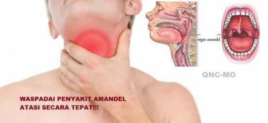 penyakit amandel