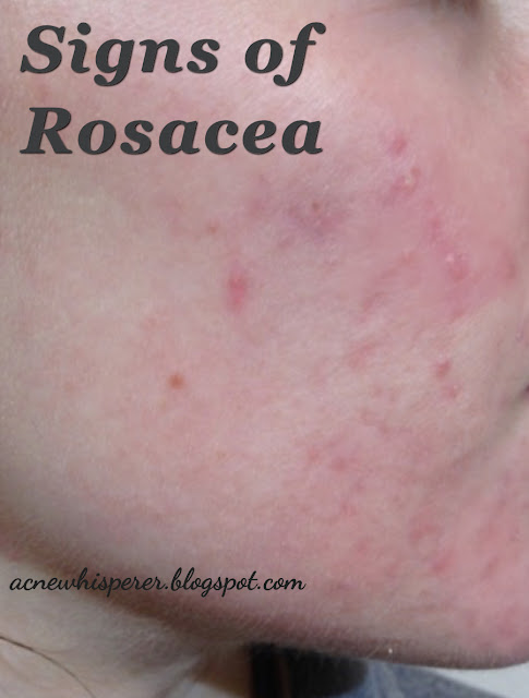 Rosacea is NOT a type of acne!  There are ways you can tell if you actually have rosacea or if you simply have adult acne.  Find out more!