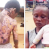 Photos: Nursing Mother Sets Husband's 10-Year-Old Brother Ablaze In Lagos