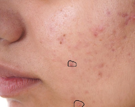 cystic acne, acne, acne treatment, acne skin care