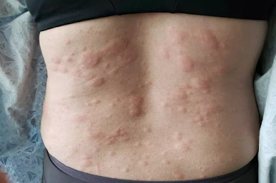 anaphylaxis after bee sting