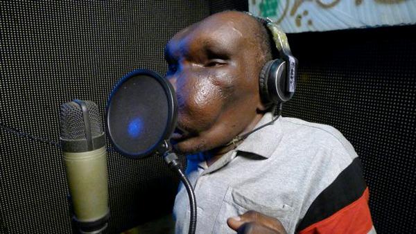 World ugliest man Godfrey Baguma, 47 photo